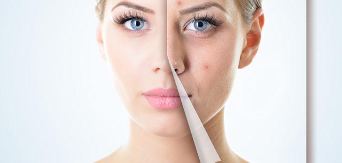 appareil-anti-acné